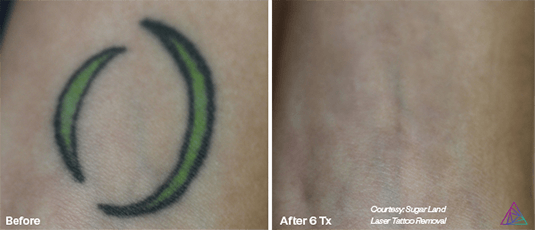 Tattoo Removal Before & After Gallery | Ink Doubt Laser Tattoo Removal