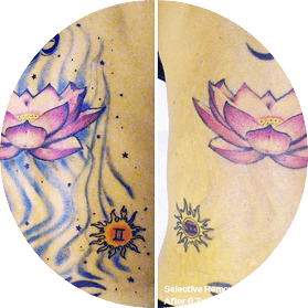Ink Doubt Laser Tattoo Removal | Laser Tattoo Removal In Denver, CO